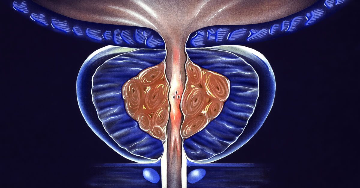 green light laser prostate surgery forum)
